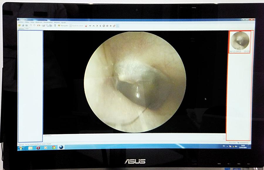 ejemplo videotoscopia