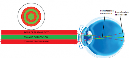 lentillas-diarias-misight-07