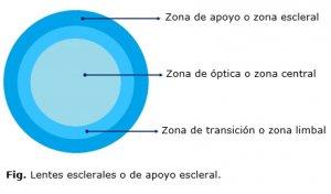 lentillas-esclerales-