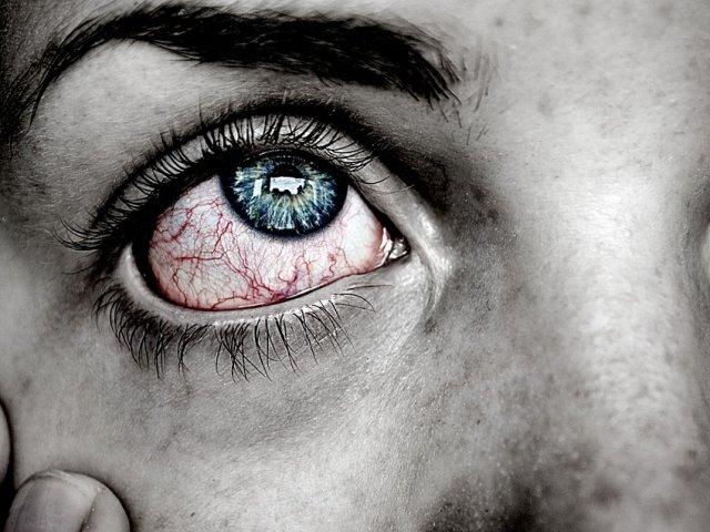 alergia-ojo-03