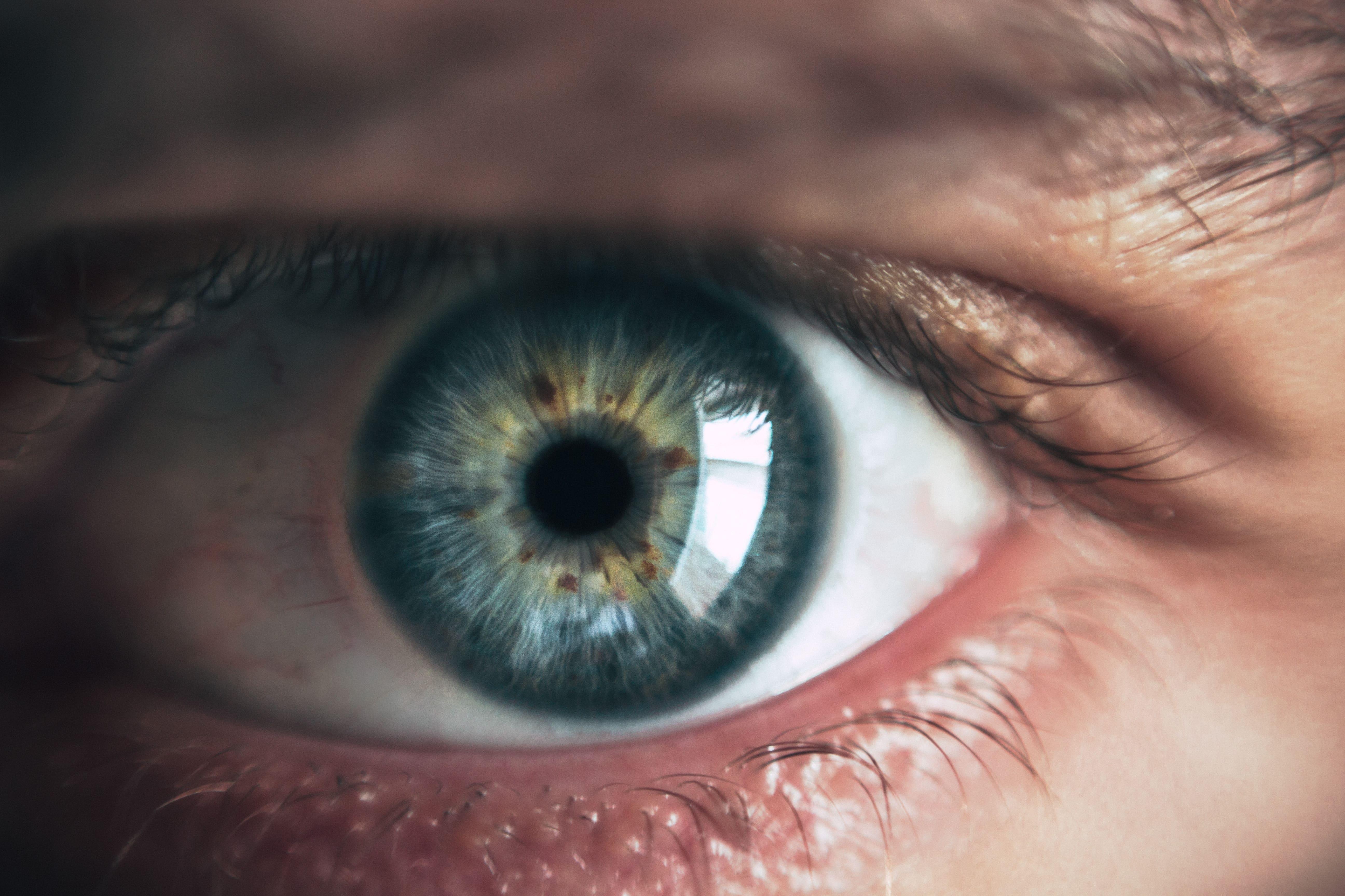 Ortoqueratología: corrige tu miopía mientras duermes